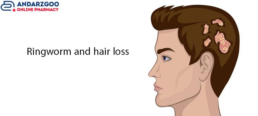 تاثیر قارچ پوستی بر ریزش مو